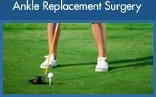 Ankle Replacement Surgery - Mr Htwe Zaw - Foot and Ankle Surgeon
